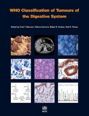 WHO classification of tumours of the digestive system - International Agency for Research on Cancer, F. Carneiro, R. H. Hruban, N. D. Theise, F. T. Bosman