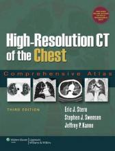 High-resolution CT of the Chest