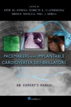 Pacemakers and Implantable Cardioverter Defibrillators