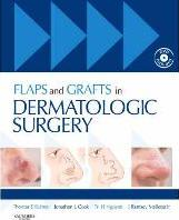 Flaps and Grafts in Dermatologic Surgery