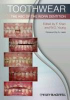 Toothwear - the ABC of the Worn Dentition