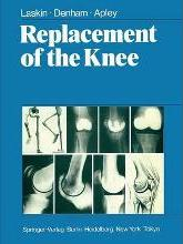 Replacement of the Knee