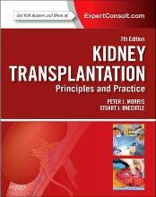 Kidney Transplantation - Principles and Practice
