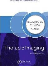 Thoracic Imaging