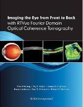 Imaging the Eye from Front to Back with RTVue Fourier-Domain Optical Coherence Tomography