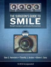 The Surgeon's Guide to SMILE
