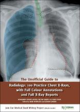 The Unofficial Guide to Radiology: 100 Practice Chest X Rays with Full Colour Annotations and Full X Ray Reports 2017