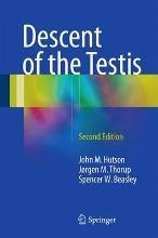 Descent of the Testis