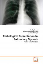 Radiological Presentation in Pulmonary Mycosis