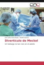 Divertículo de Meckel