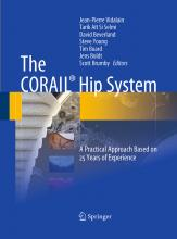The CORAIL (R) Hip System