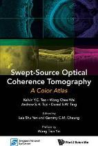 Swept-source Optical Coherence Tomography: A Color Atlas